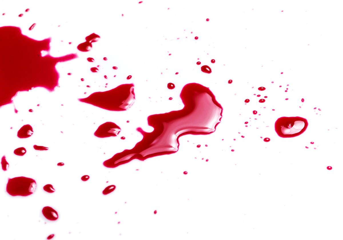 Как вывести засохшую и свежую кровь с белой или цветной ткани. чем отстирать засохшую кровь с одежды