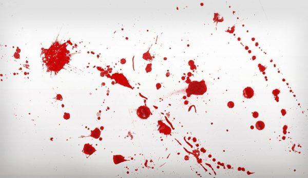 Пятна крови на диване